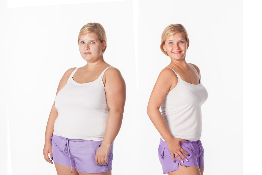Weight Loss Before and After Photos as Motivators